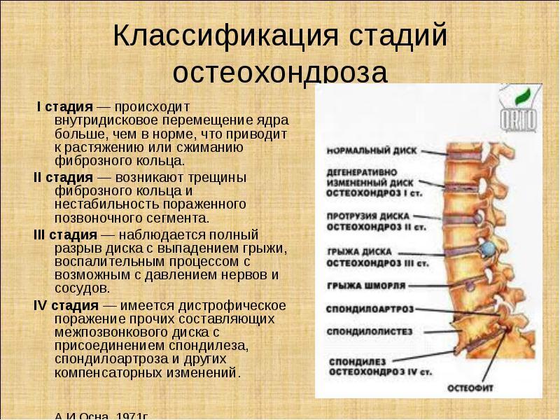 Kak-spat-pravilno-pri-shejnom-osteohondroze